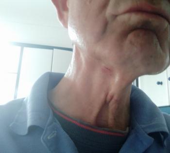 Στο Νοσοκομείο με τραύματα από δάγκωμα αδεσπότων στην είσοδο του «πολυκλαδικού»
