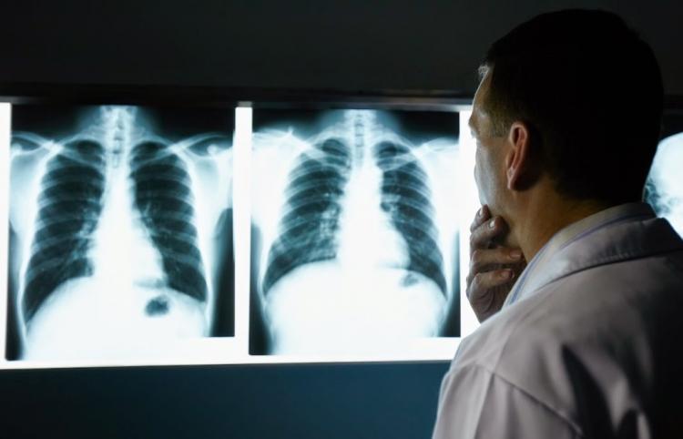 Φρ.Καρασαρλίδου : «Τη Δευτέρα τεχνικό κλιμάκιο στο ΙΚΑ Νάουσας για την αποκατάσταση της βλάβης του ακτινολογικού»